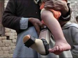 Polio case surfaces in Bajaur district of Khyber Pakhtunkhwa